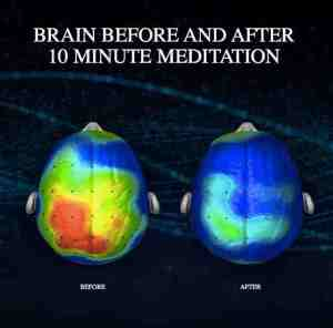 meditation-bigger-brain